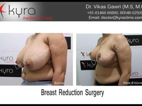 Cost of Breast Reduction in Ludhiana, Punjab, Amritsar, Jalandhar, Patiala thumbnail