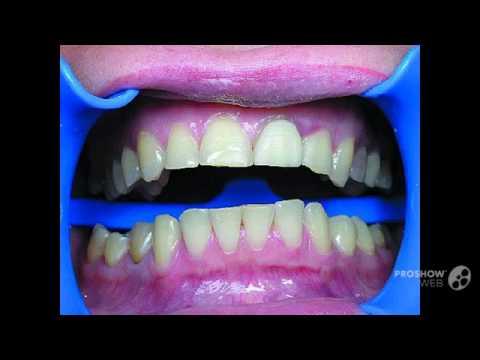 Фантом стоматологический для обучения ( рабочее место лектора) -sd-e1 производитель: prodent модель: sd-e1 наличие: есть в.