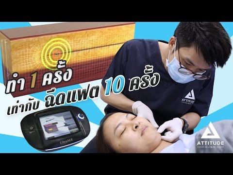 Ultra MR สลายไขมัน แก้ม เหนียง ทำครั้งเดียว = ฉีดแฟต 10 ครั้ง