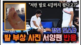 해외반응 | 정현 기권 비난하던 서양 테니스팬