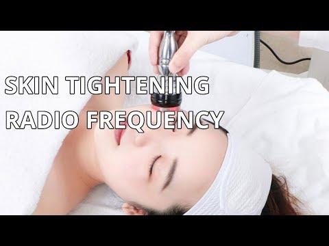 Skin Tightening | RF Radio Frequency Facial Lifting | Mychway Video