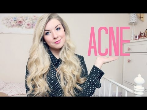 Getting Rid Of Acne - Nobody's Perfect