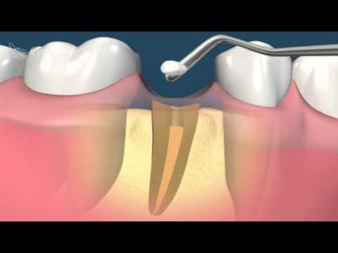 Как удалить зуб если остался только корень