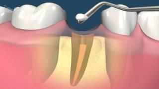 Сильное разрушение зуба  Что делать