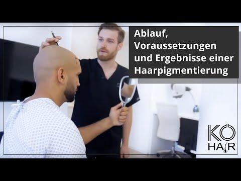 Ablauf, Voraussetzungen und Ergebnisse einer Haarpigmentierung bei KÖ-HAIR