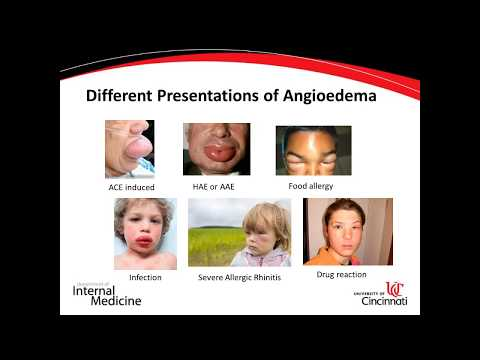 Dental Treatment: What Dentists Should Know About Angioedema