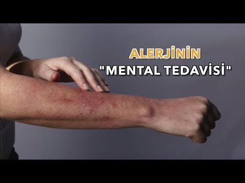 Alerjinin Mental Tedavisi (Mental Therapy Of Allergy)