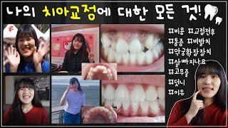 나의 치아교정에 대한 모든 것! *교정 전후 비교사진,…
