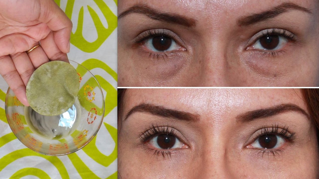 Remove Dark Circles Wrinkles Eyes Puffy Eyes Homemade Under Eye Mask Youtube