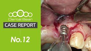 [Dentalbean No.12 ] Ridge split \u0026 expansion and immediate implant placement placement \u0026 loading