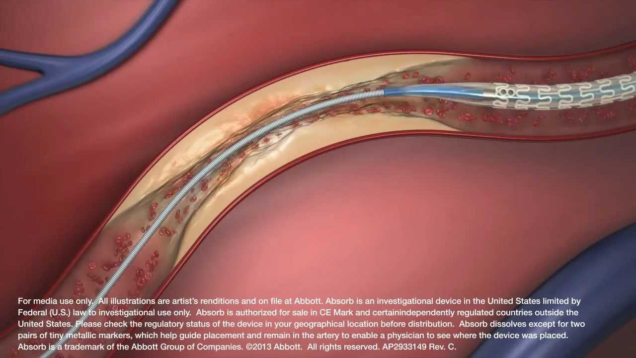 Absorb Bioresorbable Vascular Scaffold System