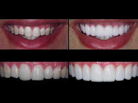 porcelain-dental-veneer-placement-san-antonio