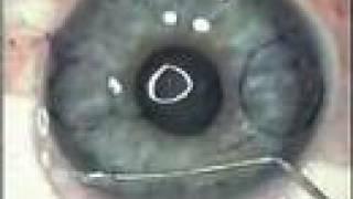 LASIK Eye Surgery, CustomVue Wavefront-guided LASIK