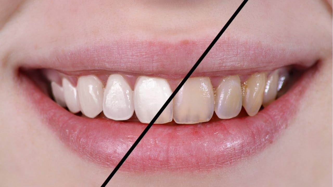 Como Clarear Os Dentes No Photoshop Photoshop Cs6 Youtube