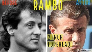 OMG SYLVESTER STALLONE&#39S HAIR TRANSPLANT HERE&#39S PROOF!