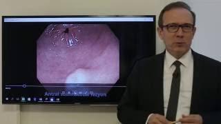 Mide tümör ve kanserleri , ameliyatsız çıkartılmaları , Prof. Dr. Orhan Tarçın