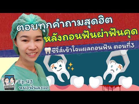 รวมคำถามสุดฮิตหลังถอนฟันและผ่าฟันคุด |ซีรี่ส์เข้าใจแผลถอนฟัน ตอนที่3|หมอฟันลงจอ #คำถาม#ถอนฟัน