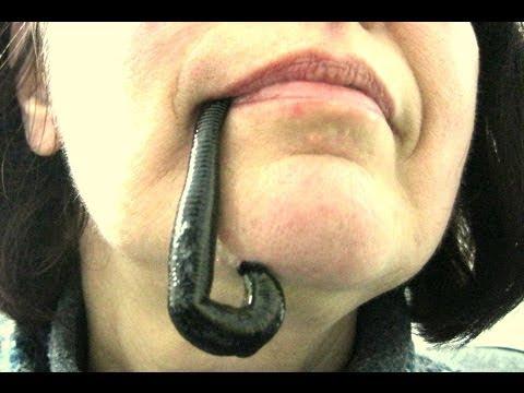 Гирудотерапия в стоматологии. Пиявки при зубной боли. Отзыв после пиявок