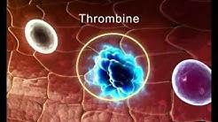 Le caillot sanguin- la formation de l'hydre-le coeur humain-