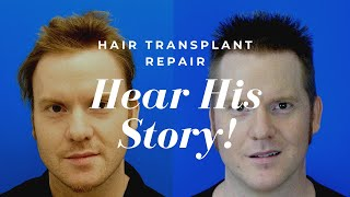 Hasson And Wong Reviews | 5,849 Grafts, Hair Transplant Repair & Hairline Reconstruction