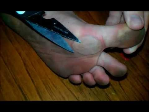 Worlds Biggest Blisters