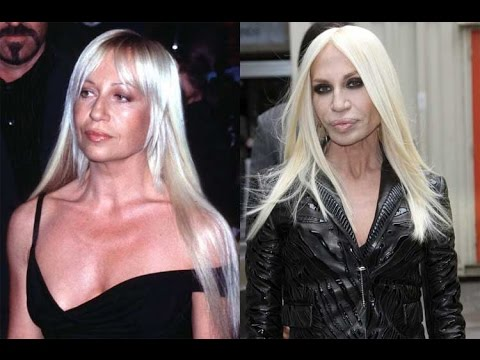 celebrity plastic surgery - video dailymotion