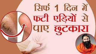 सिर्फ 1 दिन में फटी एड़ियों (Cracked Heels) से पाए छुटकारा | Swami Ramdev