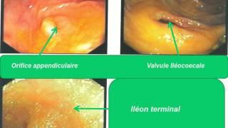 GASTRO-ENTEROLOGIE CAT devant un syndrome douloureux de la fosse iliaque drt 2015