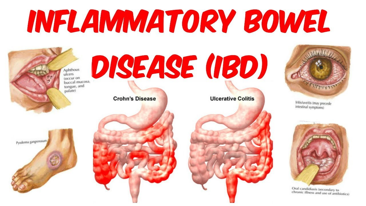 an introduction to inflammatory bowel disease contributing factors to ibd development  [ 1280 x 720 Pixel ]