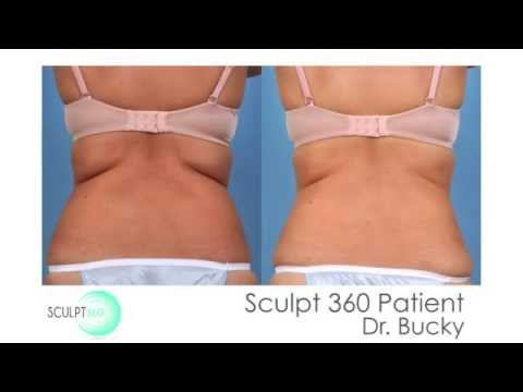 Welcome to Sculpt 360