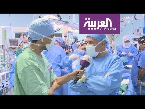 من داخل غرفة العمليات.. العربية تنقل عملية فصل توأم سيامي