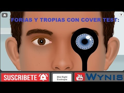 Cover Test con Forias y Tropias + Caso Real  -  Tests Visuales.