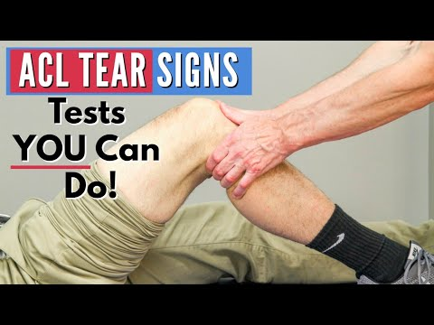Top 3 Signs You Have an ACL tear (Tests You Can Do At Home)