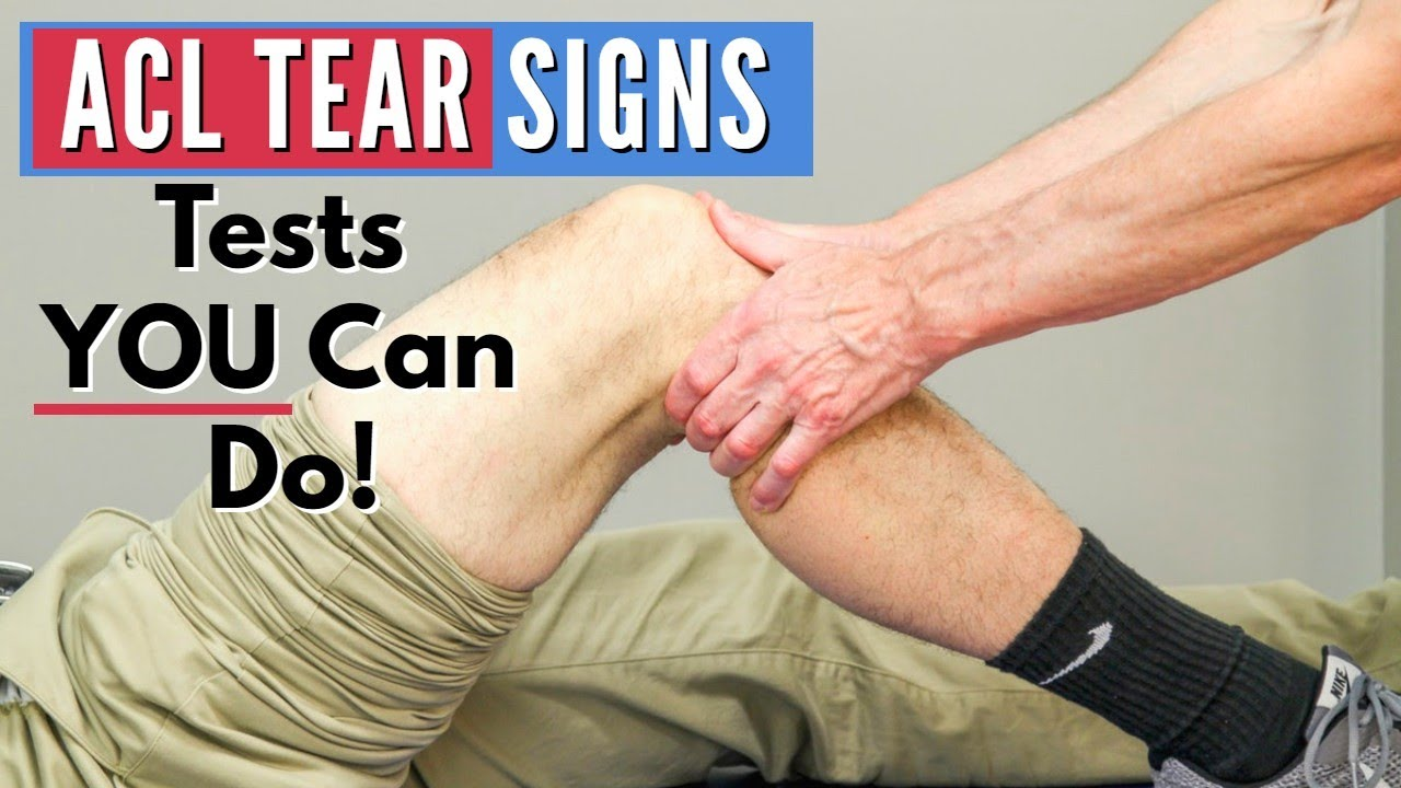 Top 3 Signs You Have An ACL Tear Tests Can Do At Home