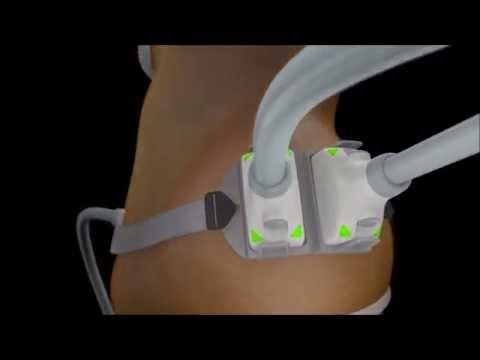 SculpSure Memphis | Body Contouring Memphis, TN | A Beautiful You Medical Spa