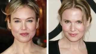 The Good Doctor - What Renée Zellweger Did Wrong with Her Face