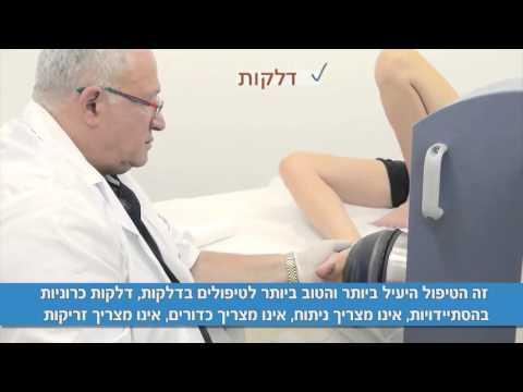 גלי הלם  רפואות-טיפול בגלי הלם: טיפול דורבן,דורבן בעקב,דורבן ברגל,דלקת בכף הרגל,דלקת בגיד אכילס