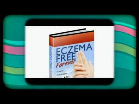 Handling Eczema During Pregnancy