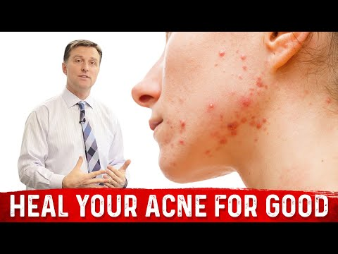 hqdefault - Nutritional Deficiency Cause Acne