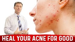 hqdefault - Vitamin A Rich Foods For Acne
