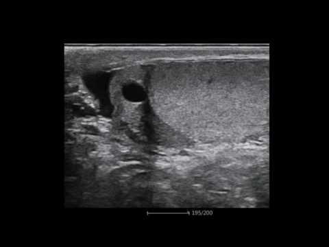 Отрезание мошонки женами фото видео рисунки реально без регистрации