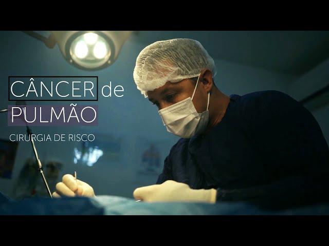 Cancer de Pulmão - Cirurgia de Risco
