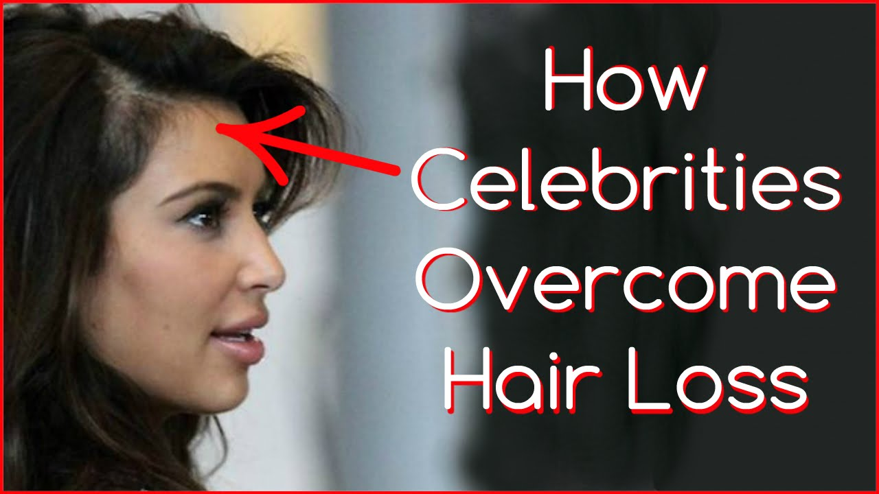 Top 10 Celebrity Hair Loss Tales | Men's Answer