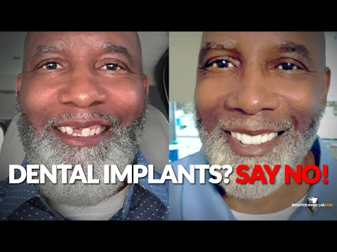 dental-implants-for-missing-teeth?-screw-your-dentist-how-to-save-20k-now---brighter-image-lab-.com