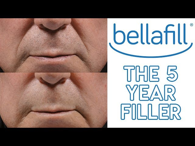 About Bellafill