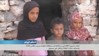 اعلان مديرية القفر في محافظة اب منطقة منكوبة