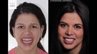 Diseño de Sonrisa digital paso a paso