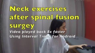 Neck Exercises After Spinal Fusion Surgery And Neck Cing