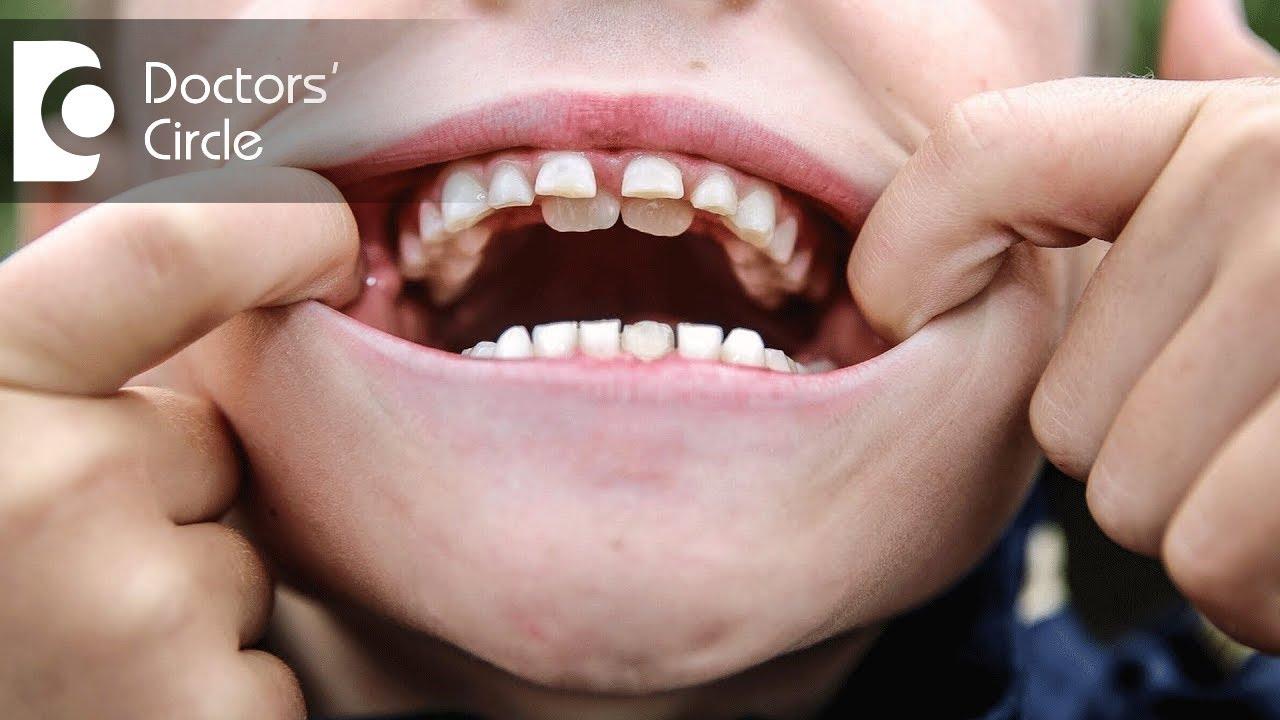 how to clean behind teeth