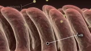 Villi Damage By Celiac Disease